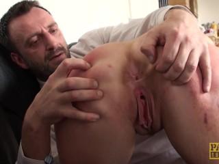 Scarified UK bird fond of spanking