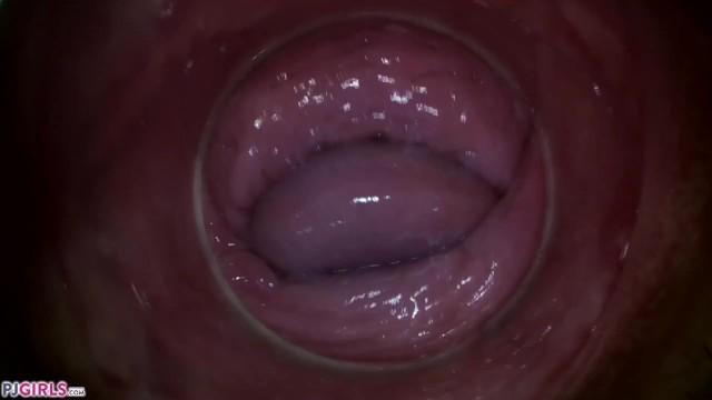 Camera In Vagina