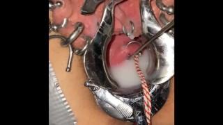 Extreme cervix sounding