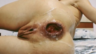 EXCITED MILF MADE SELF ANAL FISTING | PROLAPSE | BROKEN ASS