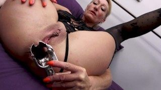 B.annonce de extreme dilatation anale - fist anal - speculum anal