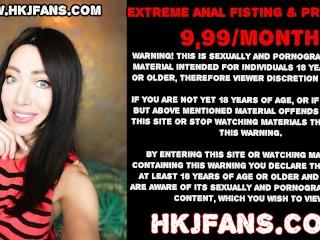 Hotkinkyjo extreme anal fisting, seahorse dildo, gape & prolapse